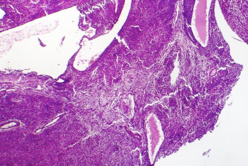 Fibrosarcoma elakartad tumör av fibroblasts arkivbild