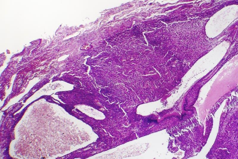 Fibrosarcoma elakartad tumör av fibroblasts royaltyfri foto