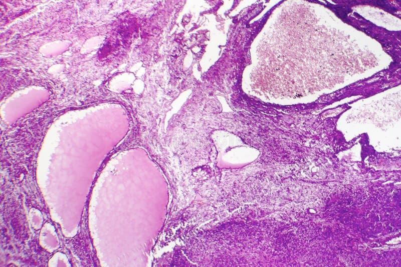 Fibrosarcoma elakartad tumör av fibroblasts royaltyfria foton