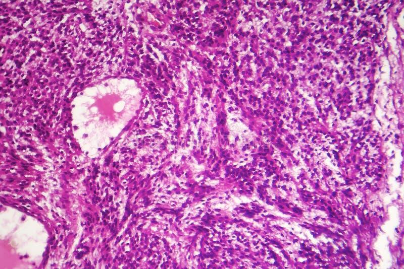 Fibrosarcoma elakartad tumör av fibroblasts arkivbilder