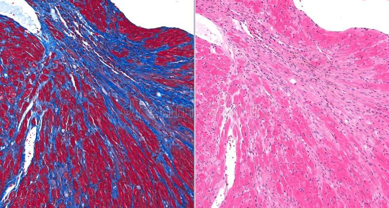 Fibrose (cicatrice) au coeur photographie stock libre de droits