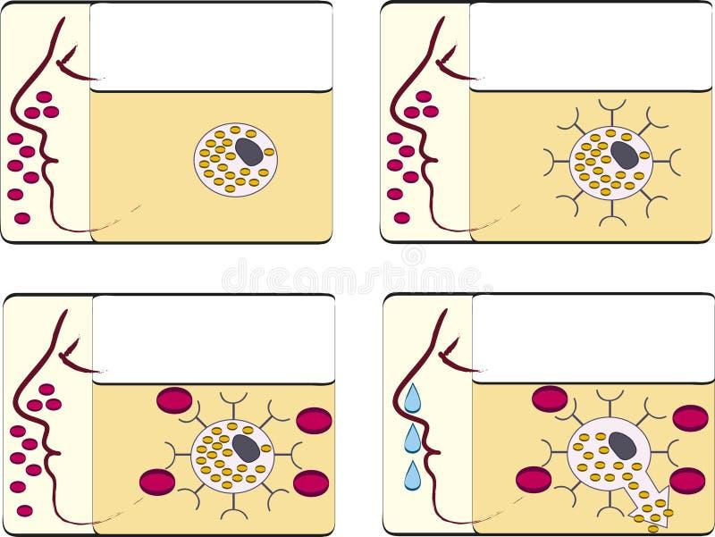 Fiebre de heno de la alergia ilustración del vector