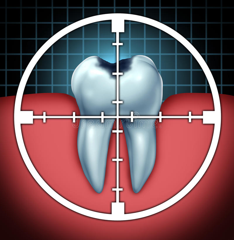 Fight Cavities. As a tooth cavity close up symbol with a target icon aiming at the oral disease as a health care concept for bone anatomy as a cure and dentist royalty free illustration