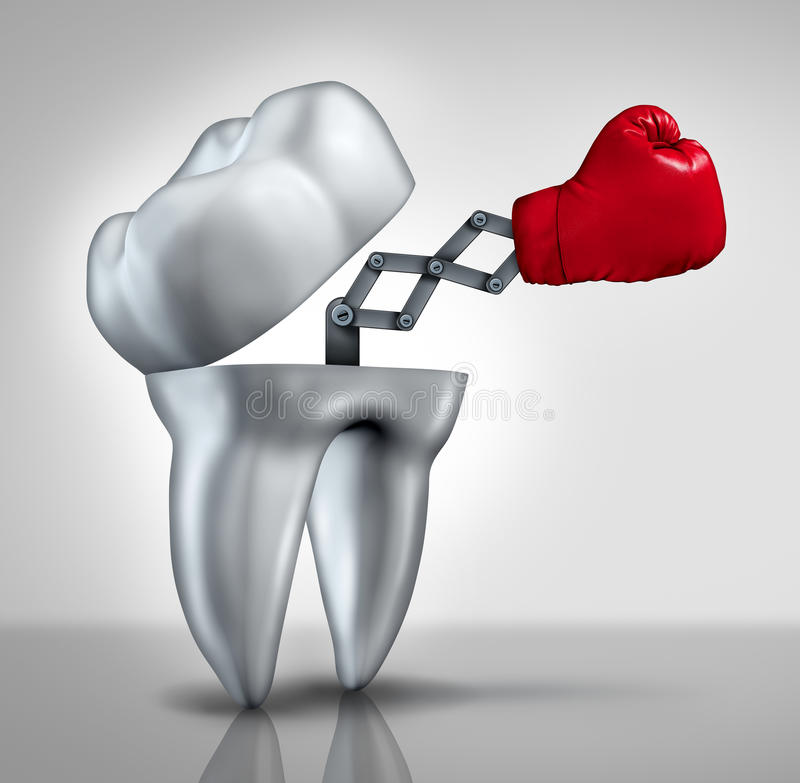 Fighting Cavities. And dental health care concept as an open molar tooth with a red boxing glove emerging to fight tooth decay as a hygiene symbol of dentistry royalty free illustration