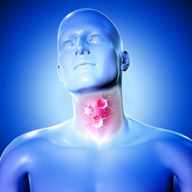 figura médica 3d con las células del virus en la garganta dolorida stock de ilustración