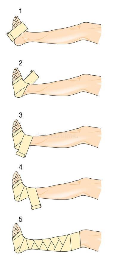 Figure of eight leg bandage. Method for wrapping a leg in a figure of eight bandage stock illustration