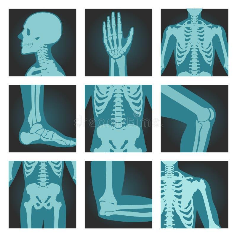 Fije de las imágenes de los tiros de la radiografía de las partes del cuerpo humanas, cabeza, muñeca, caja torácica, pie, espina  ilustración del vector