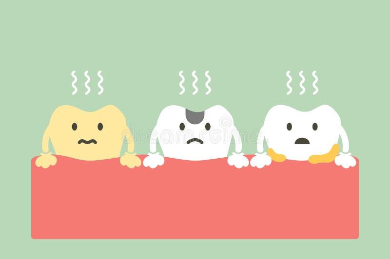 Fije del diente es malo aliento o mala respiración stock de ilustración