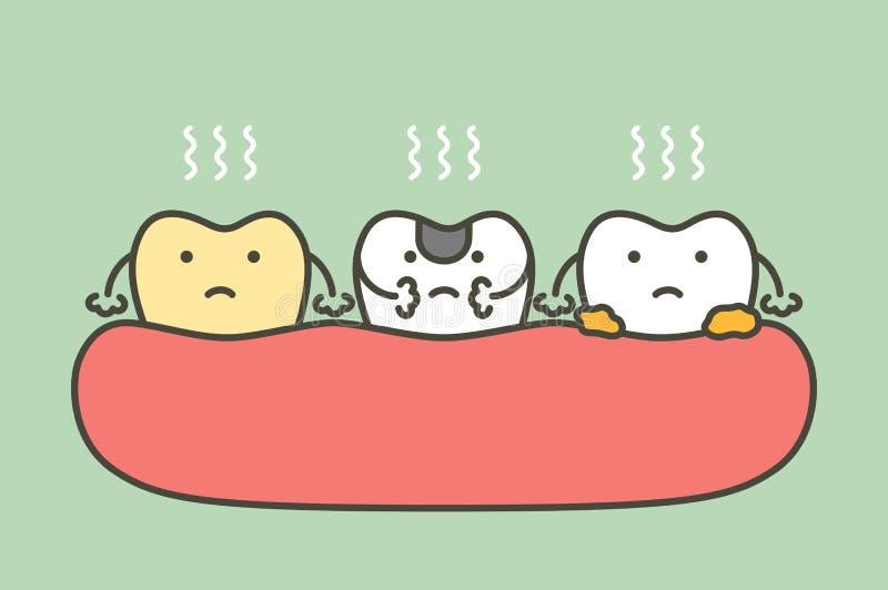 Fije del diente es malo aliento o mala respiración ilustración del vector
