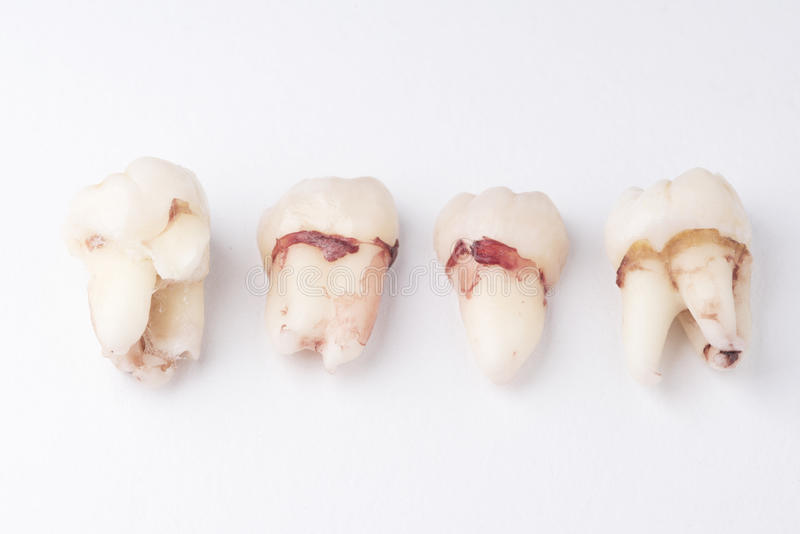 Fila del diente de sabiduría extraído foto de archivo