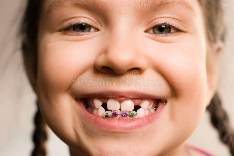 Fille avec des bagues dentaires photos libres de droits