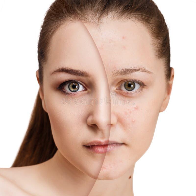 Fille avec l'acné avant et après le traitement photo stock