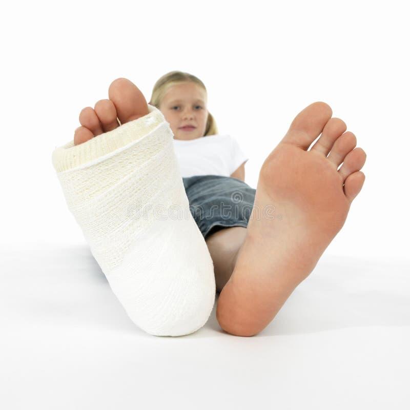 Fille avec une patte cassée image stock