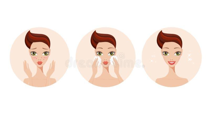 Fille d'étapes de traitement de soins de la peau et d'acné appliquant le produit de beauté de visage illustration stock