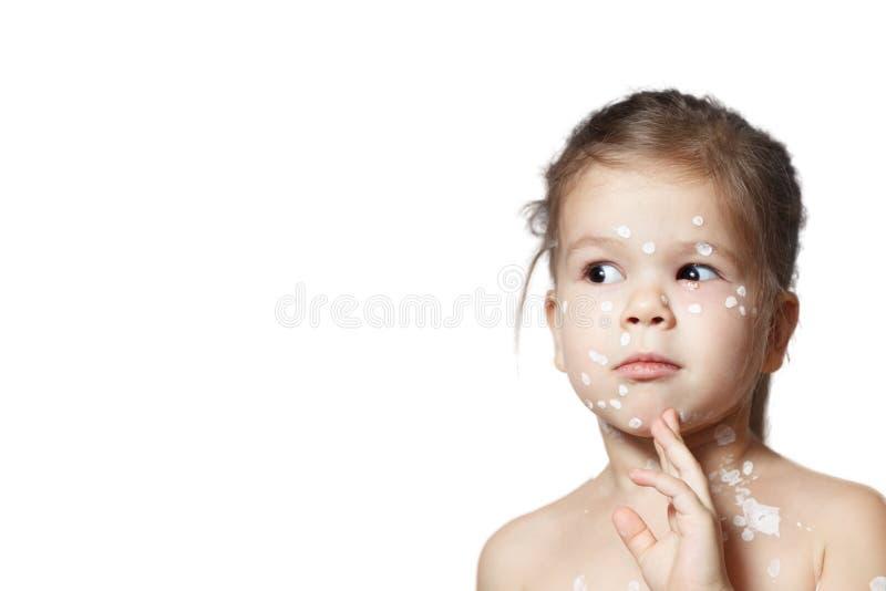 Fille mignonne de visage de plan rapproché la petite avec l'éruption de bulle de virus ou de varicelle de varicella, conjonctivit images stock