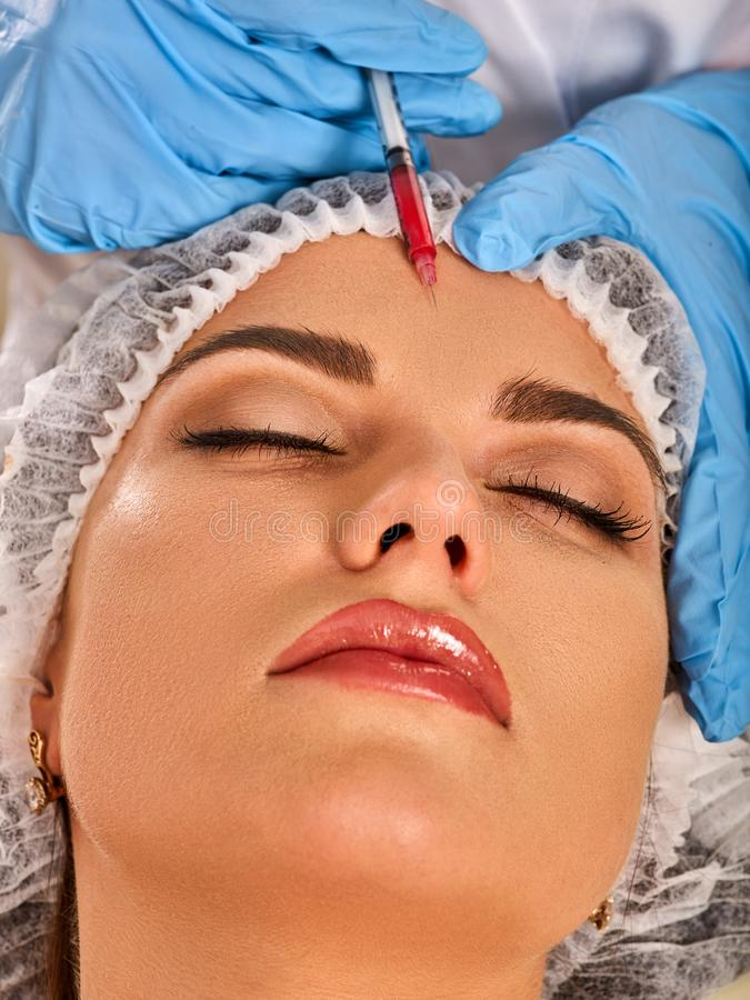Filler injection for forehead face. Plastic aesthetic facial surgery. Filler injection female forehead face. Plastic aesthetic facial surgery in beauty clinic royalty free stock images