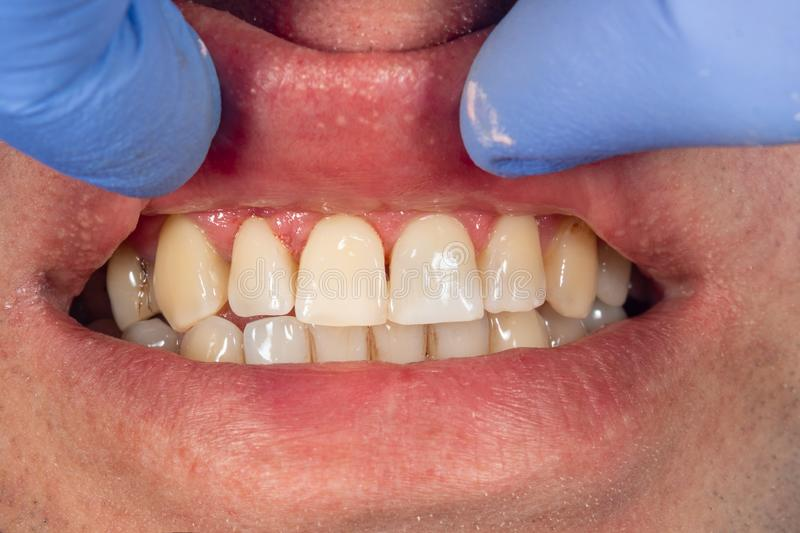 Filling of human teeth, close-up. Treatment with polymer fillings at the dentist's appointment stock photo