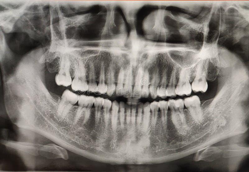 Film de rayon de X de bouche humaine avec les dents saines Détail d'image faciale panoramique de rayon X photographie stock