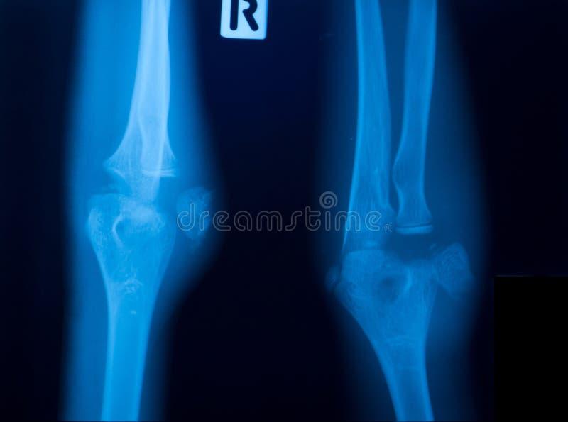 Film för stråle X av knäet arkivfoton