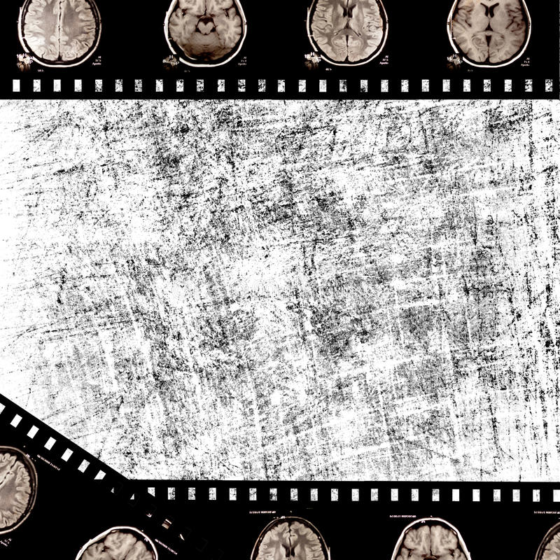 Film on grunge background. Film with x-ray scans of brain on grunge background stock illustration