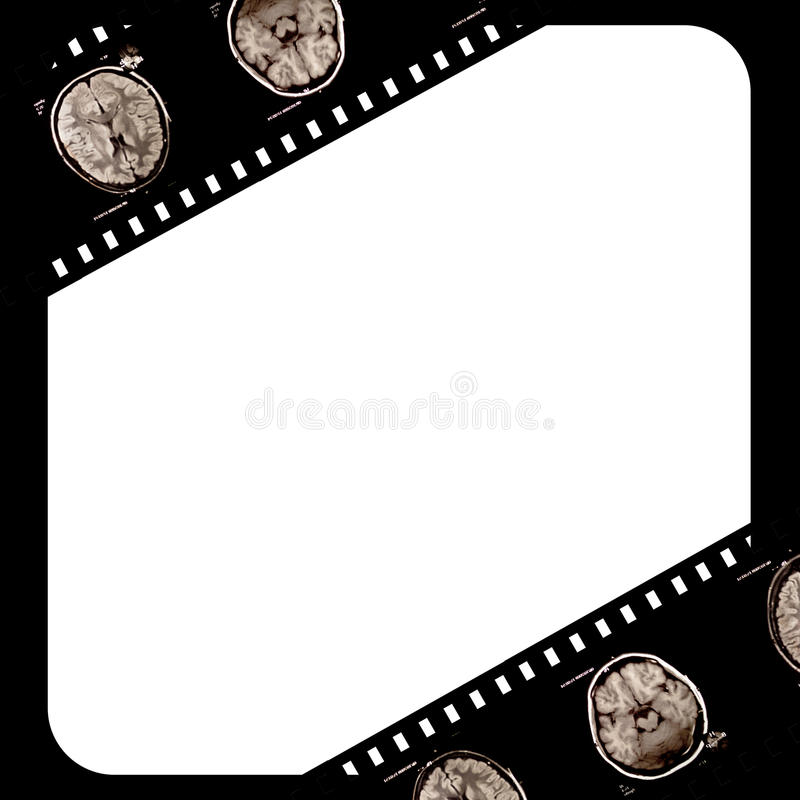 Film on grunge background. Film with x-ray scans of brain on grunge background vector illustration