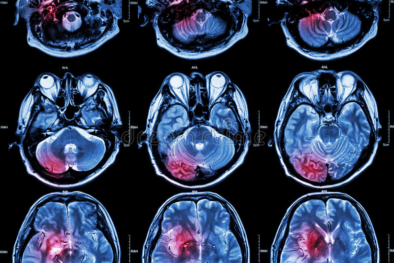 Film MRI (magnetic resonance imaging) van hersenen (slag, hersenentumor, herseninfarct, intracerebral bloeding) (Medi stock afbeelding