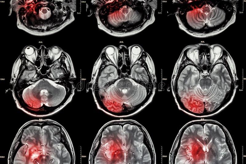 Film MRI (magnetic resonance imaging) van hersenen (slag, hersenentumor, herseninfarct, intracerebral bloeding) (Medi stock foto