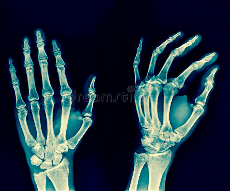 Film x-ray both hand AP : show normal human`s hands on black bac royalty free stock photography