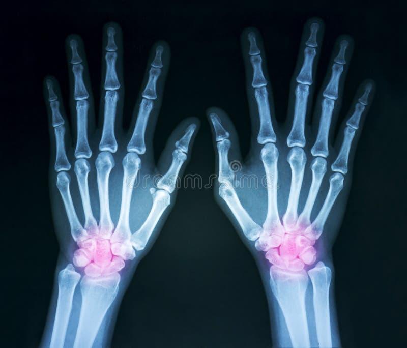 Film x-ray royalty free stock photography
