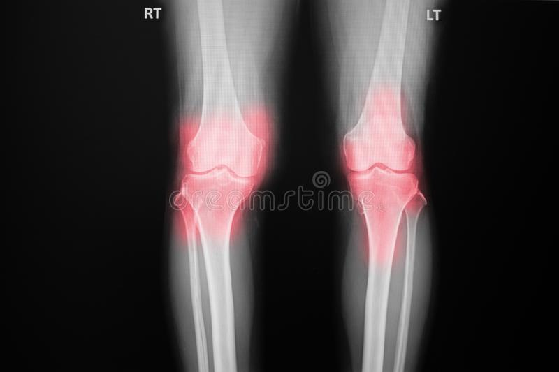 Film x-ray both knee of osteoarthritis knee patient and artificial joint. Osteoarthritis Right knee film x-ray AP anterior - posterior of knee show narrow joint stock photography