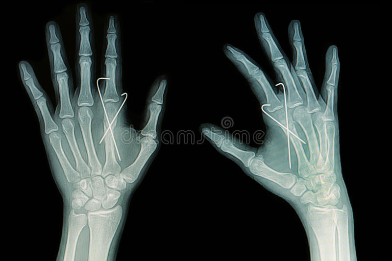 Film x-ray of hand fracture : show fracture metacarpal bone insert with k-wire royalty free stock photo