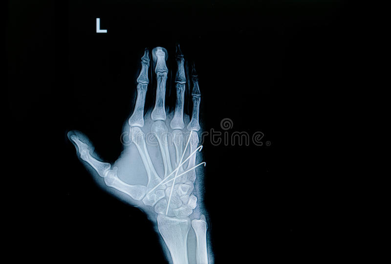 Film x-ray of hand fracture : show fracture metacarpal bone. Insert with k-wire (Kirschner wire stock image