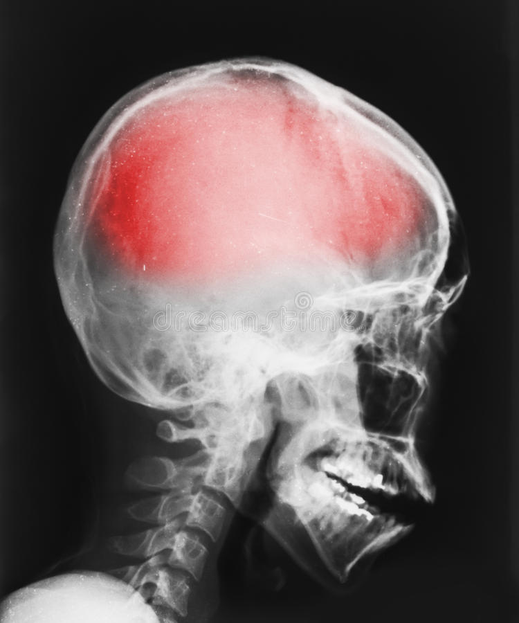 Film X-ray image of head stock photo