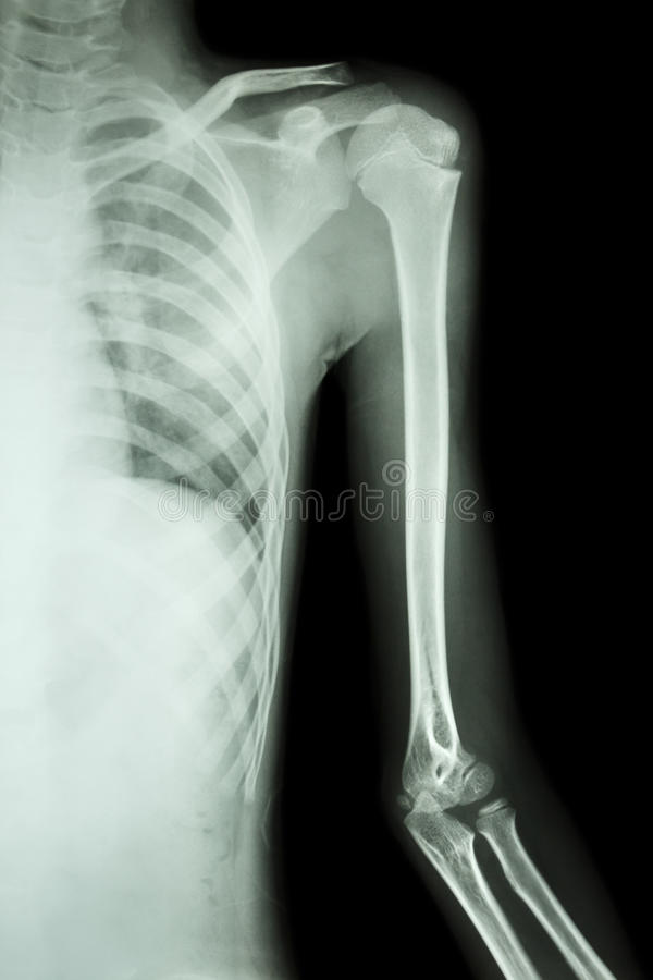 Film x-ray left shoulder. Of adult royalty free stock photography