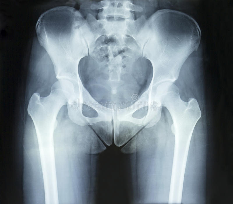 Film x-ray stock photo