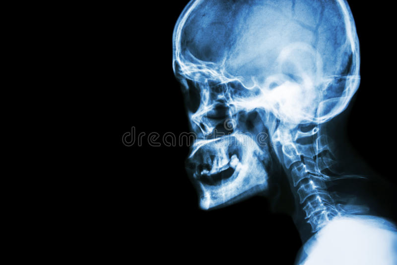 Film x-ray Skull lateral view show normal human& x27;s skull and cervical spine and blank area at left side. Film x- ray Skull lateral view show normal human& stock images