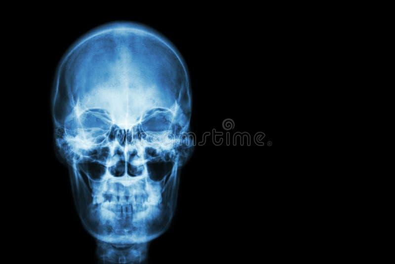 Filma röntgenstråleskallen av människan och förbigå område på rätsidan (läkarundersökning, vetenskap och sjukvårdbegrepp och bakg royaltyfri bild