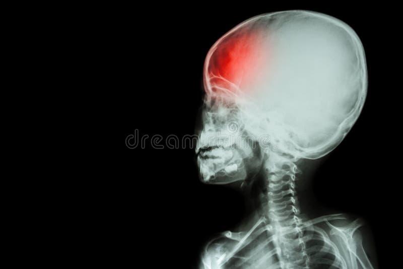 película de dolor en el fondo izquierdo