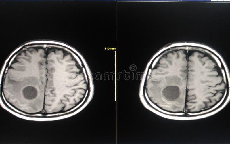 Filme MRI cérebro fotografia de stock