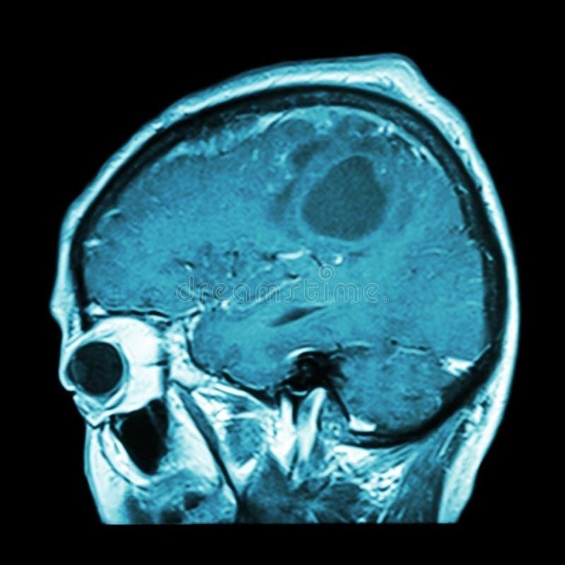 Filme MRI del cerebro con el tumor cerebral (avión sagital, vista lateral, visión lateral) (médica, la atención sanitaria, el fon foto de archivo