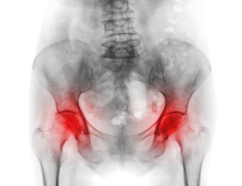 Filme a pelve do raio X do paciente e da artrite da osteoporose ambos quadril imagem de stock
