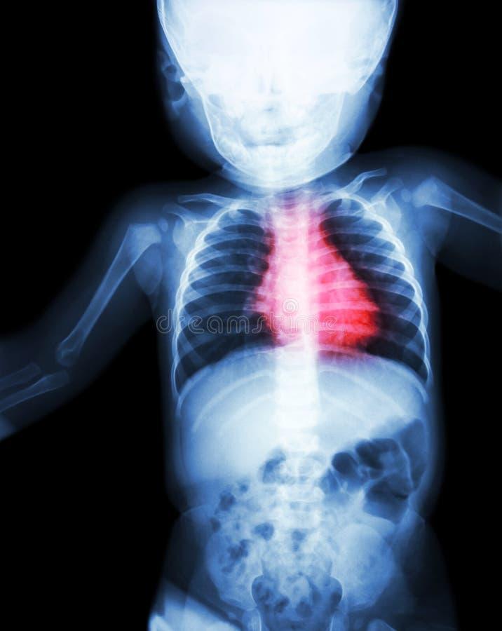 Filmen Sie s-Körper des Röntgenstrahls ganzes Kinder'mit Herzkrankheit (rheumatische Herzkrankheit, Herzklappenkrankheit) (Herz-K stockfotos