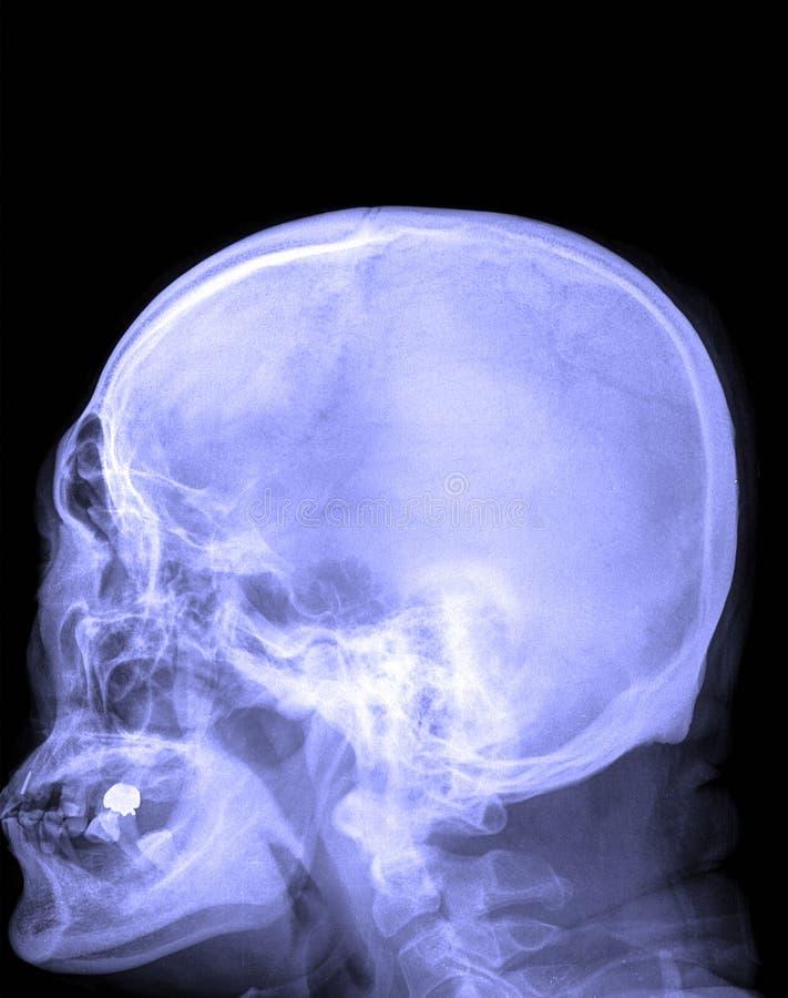 Filmez le crâne de rayon X et la vue cervicale de partie latérale d'épine images stock