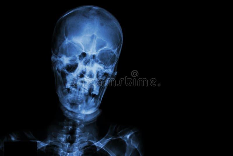 Filmez le crâne de rayon X et masquez le secteur au côté droit photographie stock