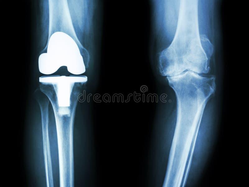 Filmi il ginocchio dei raggi x del paziente del ginocchio di osteoartrite e del giunto artificiale immagini stock
