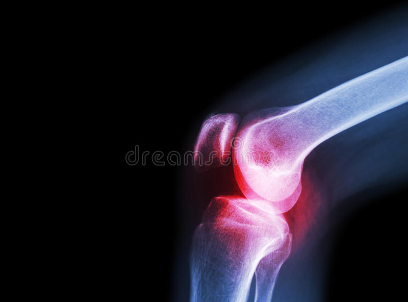 Filmi il giunto di ginocchio dei raggi x con l'artrite (gotta, artrite reumatoide, artrite settica, ginocchio di osteoartrite) e  immagine stock libera da diritti
