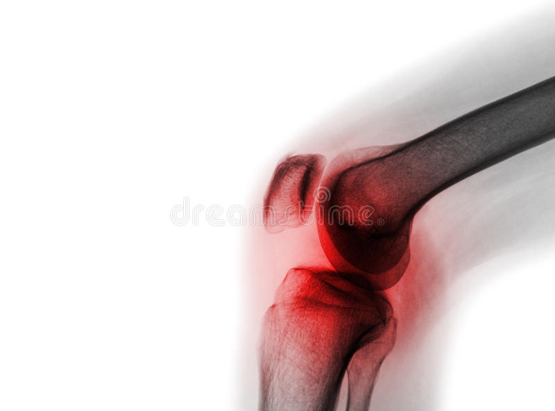 Filmi il giunto di ginocchio dei raggi x con l'artrite & x28; Gotta, artrite reumatoide, artrite settica, ginocchio di osteoartri fotografia stock