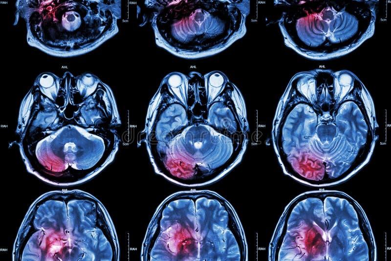 Filmi il RMI (imaging a risonanza magnetica) del cervello (colpo, tumore cerebrale, infarto cerebrale, emorragia intracerebrale)  immagine stock