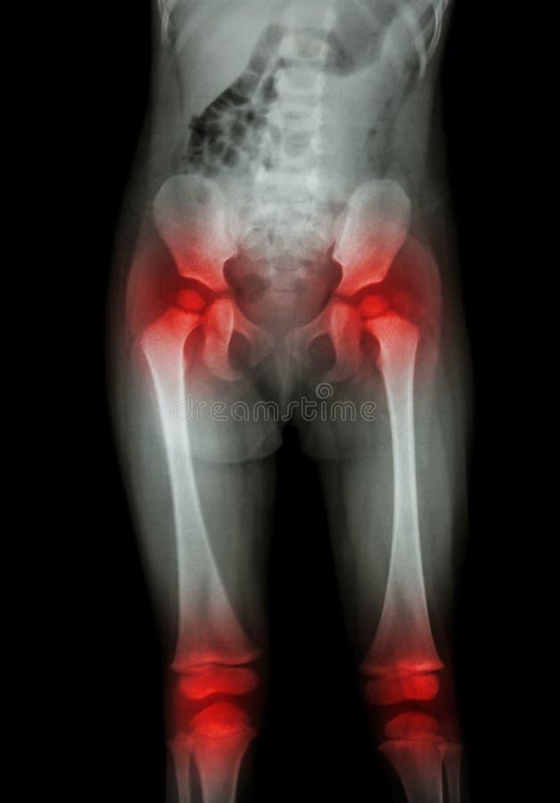 Filmröntgenstrålekroppen av barnet (mage, bakdel, lår, knä) och artrit på båda höften, båda knäa (gikten som, är reumatoida) royaltyfri fotografi