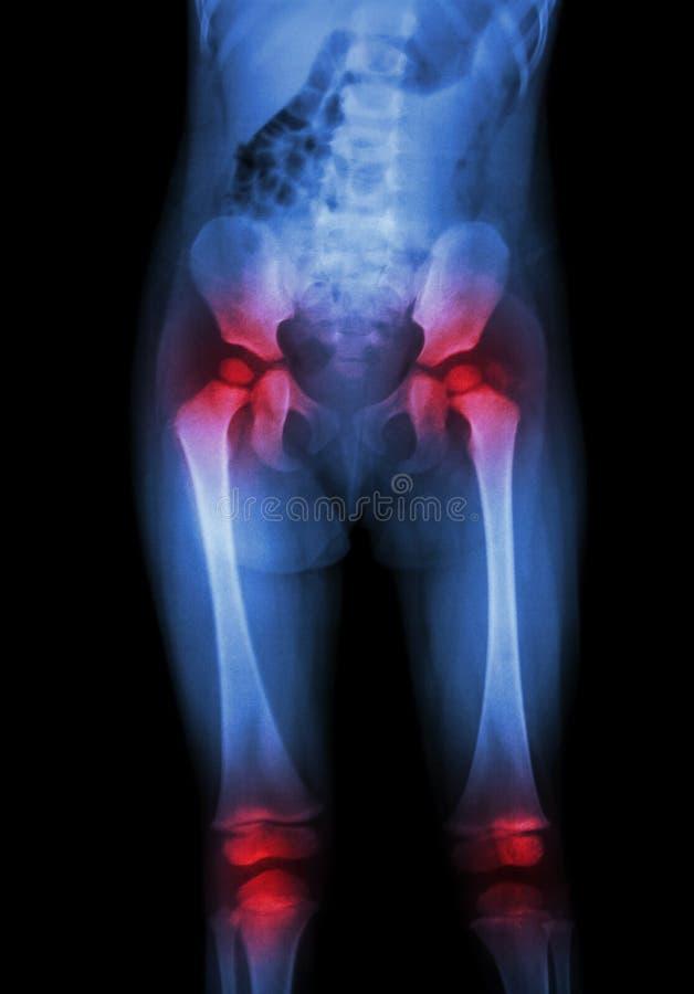 Filmröntgenstrålekroppen av barnet (mage, bakdel, lår, knä) och artrit på båda höften, båda knäa (gikten som, är reumatoida) arkivbilder